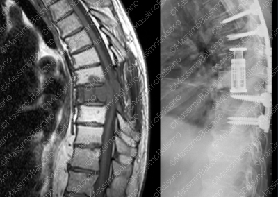 Tumori vertebrali
